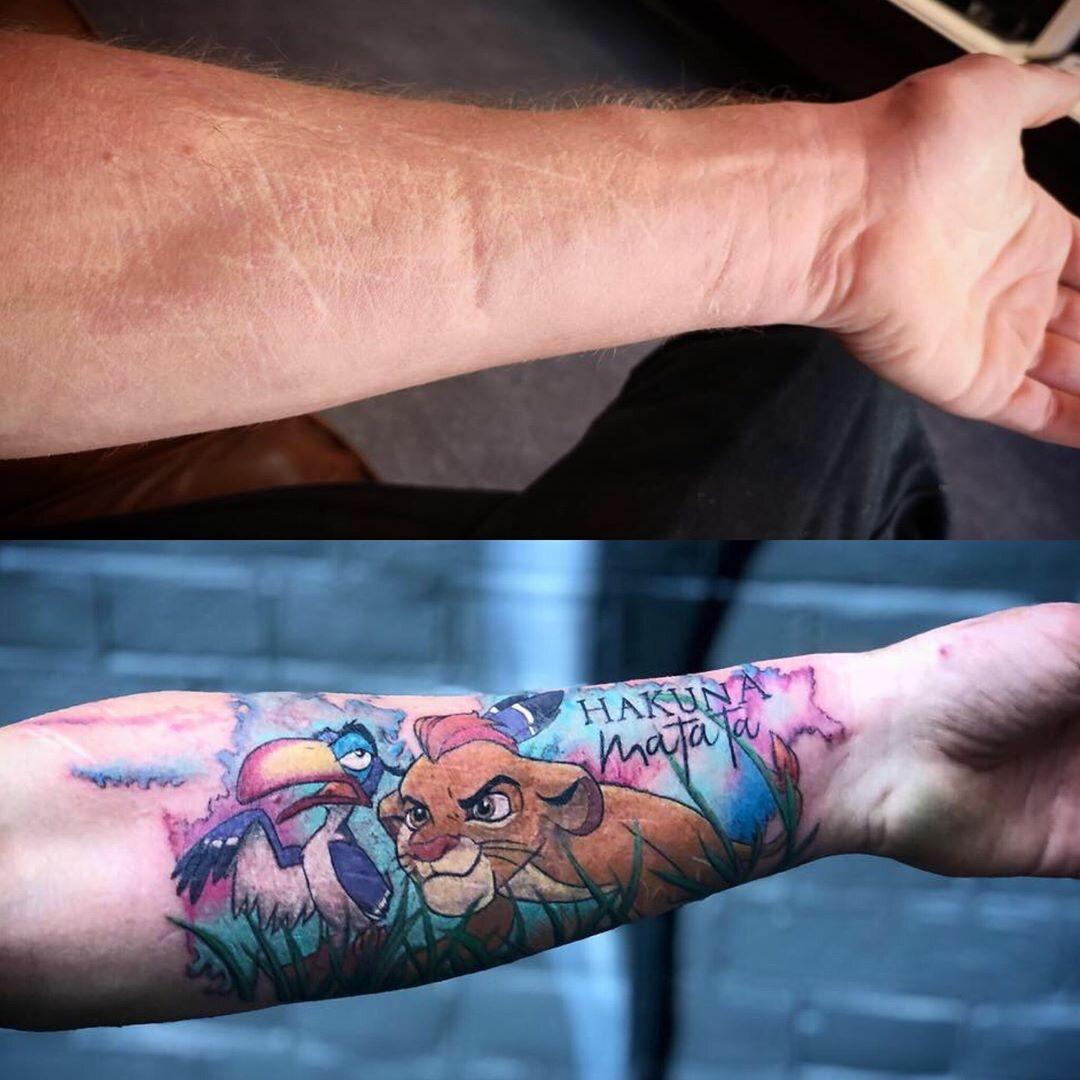 Tatuaż Zakrywający Blizny Galeria Zdjęcie 19